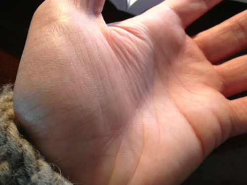 wrinkly-hand